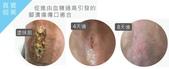 天然個人護理用品:犀補靈強效修復軟膏 褥瘡 糖尿腳潰瘍 (Cytopeutic Advance Rejuvenating Cream) 盈康社11.jpg