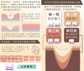 天然個人護理用品:犀補靈強效修復軟膏 褥瘡 糖尿腳潰瘍 (Cytopeutic Advance Rejuvenating Cream) 盈康社5.jpg