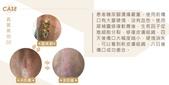 天然個人護理用品:犀補靈強效修復軟膏 褥瘡 糖尿腳潰瘍 (Cytopeutic Advance Rejuvenating Cream) 盈康社15.jpg